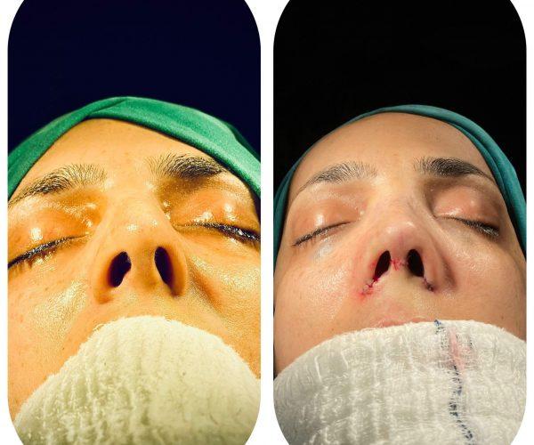 rinoplasti-before-after-1