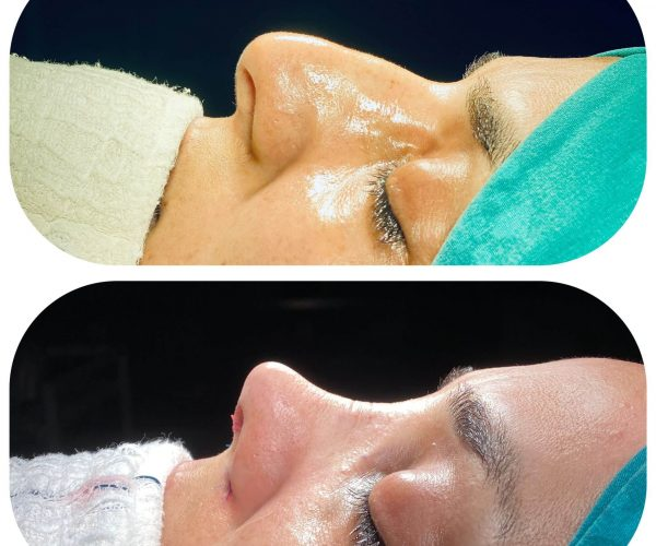 rinoplasti-before-after-3