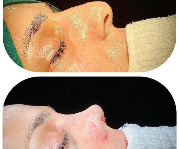 rinoplasti-before-after-4