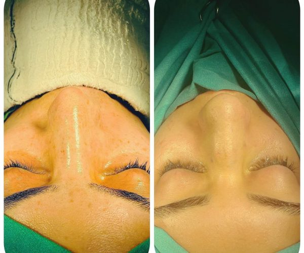 rinoplasti-before-after-5